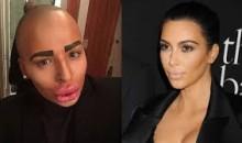 British Man Spends $150K on Botox To Look Like Kim Kardashian